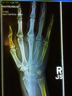 #mondaymorning - there's a 1st time for everything-finger broken in 2 places,wrist broken- #soccer -lol! Not #fun