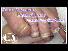 This video is about 👣 Pedicure Deep Cleaning Excessive Dry Skin from Elderly Toenails and Feet 👣In todays pedicure I am going to show you to care for and cut. Ingrown Toenail Treatment, Ingrown Toe Nail, Pedicure Tips, Pedicure Supplies, Emerald Nails, Dry Skin On Feet, Nail Care Routine, Long Toenails, Pedicures