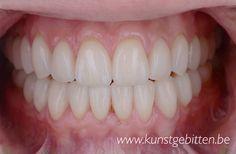Een natuurlijke lach met www.kunstgebitten.be