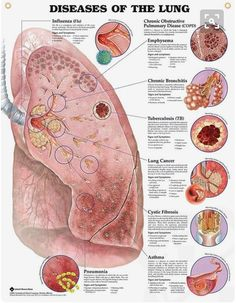Diseases of the Lung anatomy poster shows prominent diseased lung with 8 close-up illustrations of specific diseases. Diseases of the Lung anatomy poster shows prominent diseased lung with 8 close-up illustrations of specific diseases. Medical Student, Medical Coding, Medical Science, Nursing Students, Respiratory Therapy, Respiratory System, Circulatory System, Nclex, Lung Anatomy