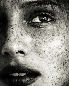 face sprinkled with freckles