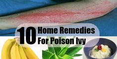 Top 10 Home Remedies for Poison Ivy #homeremedies #poisonivy