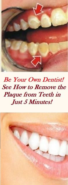 Poor oral hygiene can bring unpleasant problems and increase the risk of plaque on your teeth, although some people are genetically predisposed to it. Plaque is usually removed from the teeth with expensive dental treatments, but you should know that you Fitness Workouts, Home Remedies, Natural Remedies, Health Remedies, Herbal Remedies, Mouthwash, Oral Hygiene, Oral Health, Health Care
