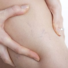 You're never too young for spider veins, but you can minimize their appearance!