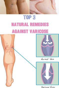 Top 3 natural remedies against varicose