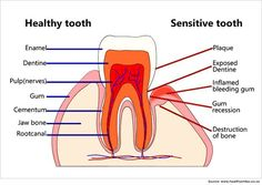 Home Remedies for Sensitive Teeth Tooth