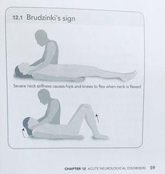 Brudzinki's sign
