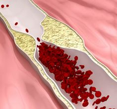 The use of herbs to clear blocked arteries, could serve to be a natural remedy for this condition. To know which herbs clear clogged arteries, read the following. . . .