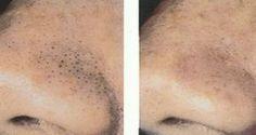 Így tüntetheted el a csúnya kis fekete mitesszereket az arcodról egy fogkefe segítségével! – Filantropikum.com Homemade Beauty Recipes, Diy Beauty, Health Fitness, Makeup, Creativity, Sport, Design, Beauty, Health And Beauty