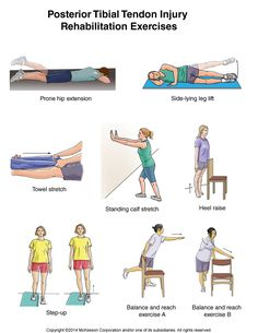 Summit Medical Group - Posterior Tibial Tendon Injury Exercises
