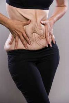 Losing lots of weight quickly can result in unsightly sagging skin. This article discusses ways of getting rid of sagging skin.