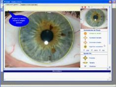 Video demo - Iridology Software