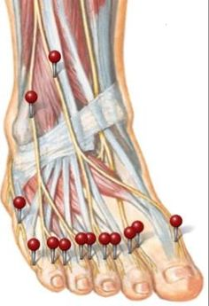 pain on the top of the foot and ankle by Dr. This is where my pain is. Foot Pain Chart, Lisfranc Injury, Magic Fingers, Body Chart, Ankle Pain, Trigger Point Therapy, Peripheral Neuropathy, Massage Benefits, Good Mental Health