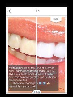 Teeth Whitening!🙊