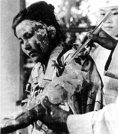 Victim of Atomic Bomb 003 - 原子爆弾 - Wikipedia