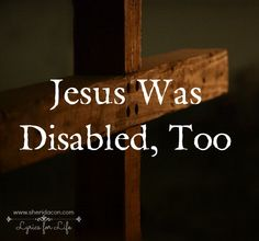 Jesus was disabled, too -- When we talk about disability ministry in the church, there is one important truth we should never forget. Jesus was disabled, too.