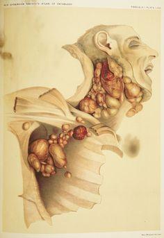 5 Gross But Cool Vintage Anatomy Drawings | Popular Science