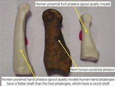 Comparison of human vs non human phalanges via @WKemp_MT_FPDoc on Twitter