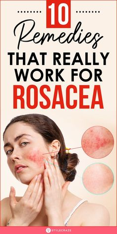 Beauty Tips For Skin, Health And Beauty Tips, Skin Tips, Beauty Secrets, Beauty Skin, Home Remedies For Rosacea, Herbs For Health, How To Get Rid Of Acne, Acne Skin