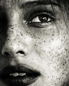 skin - freckles - photography