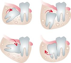 Some information to share with you on Wisdom teeth http://tourmedical.com/en/blog/