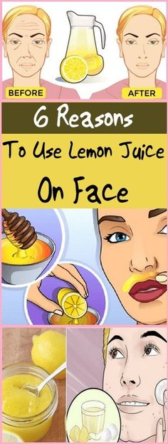 6 Reasons To Use Lemon Juice On Face is Very Effective