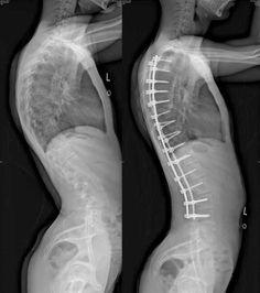 Post with 81996 views. Scoliosis Surgery, Chronic Illness, Chronic Pain, Spinal Fusion Surgery, Mri Brain, Dread Doctors, Spinal Stenosis, Rad Tech, Health Fitness