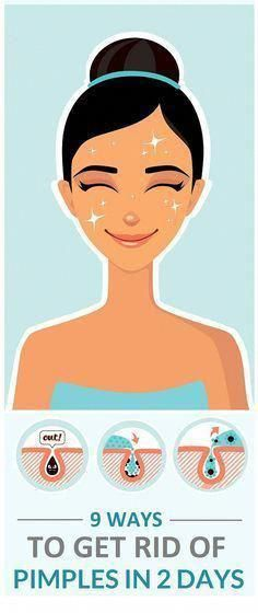Pimples and its marks or dark spots could be really annoying. Here are 15 best ways by which you can remove pimples and pimple marks or dark spots in 2 days only. Brown Spots On Skin, Skin Spots, Dark Spots, Perfectly Posh, Sunspots On Face, Pimple Marks, Skin Moles, Skin Growths, How To Get Rid Of Pimples