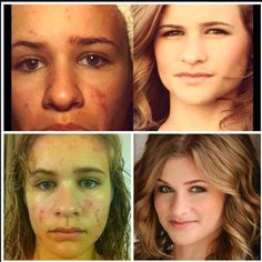 """This sweet girl is Jenna Boyd, an actress who appeared in """"Sisterhood of The Traveling Pants."""" She's struggled with acne all of her life, and had turned to Accutane to help.  And, to some degree it helped.  Her mom went to a R+F event where she learned about Unblemish. Jenna started on it and fell in LOVE with her results. She's added in Reverse to take away some of the darker spots from scarring, and now she's hooked on R+F for life. So she signed up as a consultant! www.knewlon.myrandf.com"""