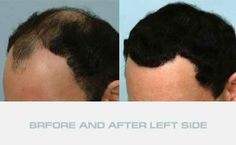 10 Best Hair Transplantation Turkey Images On Pinterest Turkey