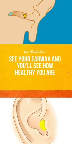 See Your Earwax And You'll See How Healthy You Are - Health Longevity - Best Picture For motivational quotes for women For Your Taste You are looking for something, and - Health And Fitness Articles, Health And Nutrition, Wellness Fitness, Health Fitness, Health Yoga, Natural Cures, Natural Health, Health And Beauty Tips, Health Tips