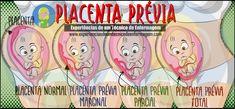 A placenta prévia é uma situação em obstetrícia digna de vigilância, no entanto, felizmente não é muito frequente. Entenda um pouco como ocorre e quais são os tipos mais comuns dessa situação em nosso blog!