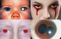 Top 10 Shocking Eye Disorders