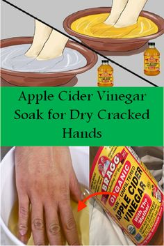 Apple Cider Vinegar Soak for Dry Cracked Hands – TOP 5 DIY - puntoprecisoapp Dry Hands Remedy, Dry Skin Remedies, Natural Remedies, Dry Cracked Hands, Cracked Skin, Dry Skin On Feet, Dry Feet Soak, Hand Soak, Apple Cider Vinegar Remedies
