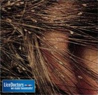 28 Best Pictures Of Lice And Nits Images Lice Nits Pictures Home