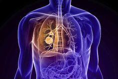 Câncer de pulmão de células não pequenas é um tipo de tumor. Conheça as causas e sintomas do câncer de pulmão de células não pequenas.