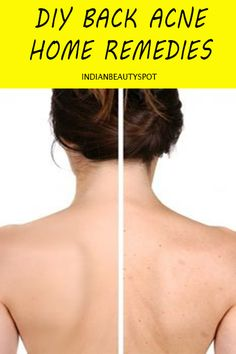 natural treatments-to-cure-back-body-acne