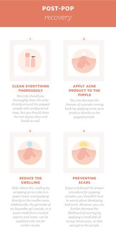 how to recover from popping a pimple