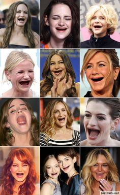 Popular actresses without teeth