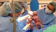 Blog Paulo Benjeri Notícias: Gêmeas nascem de mãos dadas e causam comoção em sa...