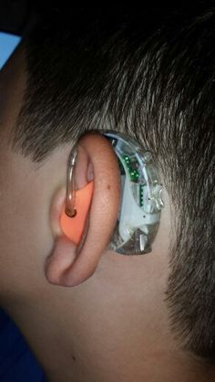 My son had a cool loaner Phonak Nadia hearing aid while his is being repaired. https://hearingcentral.com/shop/