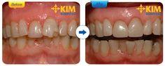 Nếu răng bạn bị tổn thương quá nhiều đến các mô răng, ngà răng thì khi hàn răng bạn sẽ cảm thấy ê buốt dù thao tác hàn không phải xâm lấn quá nhiều.