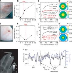 Epidermal devices for noninvasive, precise, and continuous mapping of macrovascular and microvascular blood flow   Science Advances