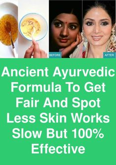Ancient Ayurvedic Formula to get Fair and spot less skin - Works slow but effective Whitening Face Mask, Ageless Beauty, Natural Solutions, Ayurveda, The 100, It Works, How To Get, Science, 3 Months
