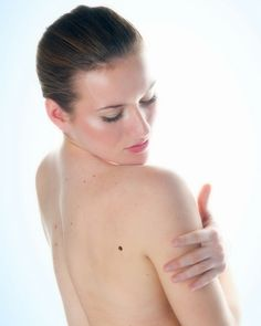 Childhood stress could be linked to skin cancer risk