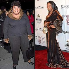 17 Best Celebrity Weight Loss Surgery Images Celebrity Weight Loss