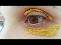 Here is another effective way to get rid of dark circles. Take the 2 tbsp of lemon juice and mix pinch of turmeric powder to it. Apply this solution with the...