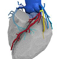Around 50% of men and 30% of women with untreated FH will develop coronary heart disease by the time they're 55