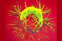 Célula de câncer de mama fotografada por um microscópio eletrônico de varredura (imagem: Wikimedia Commons)
