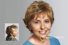Female Hair Loss Treatment | http://eldoradohair.com